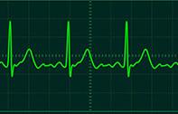 นักวิจัยไอเดียเจ๋ง นำคลื่นไฟฟ้าหัวใจ (ECG) มาใช้เป็น Password ปกป้องฐานข้อมูลคนไข้ ยืนยันปลอมยากกว่าลายนิ้วมือหลายเท่า